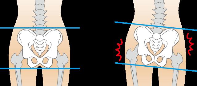 「ぎっくり腰」の画像検索結果